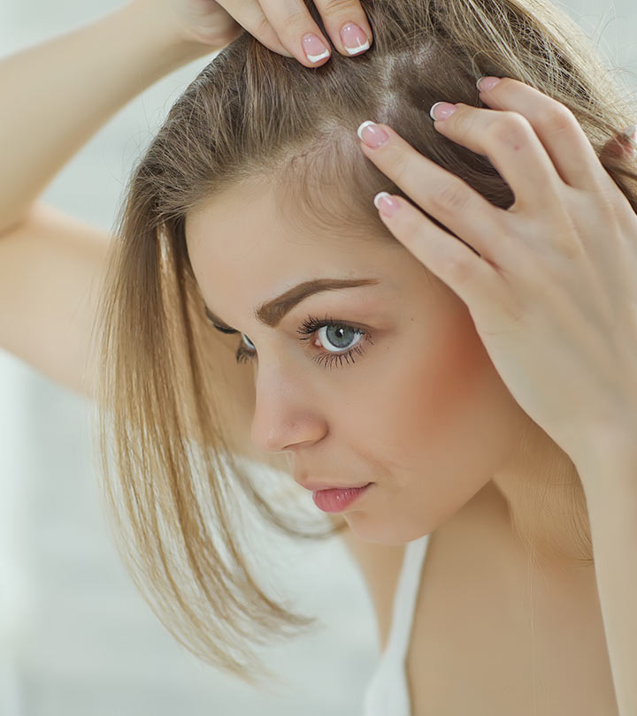 8 Simple Ways To Treat Hair Loss At The Temples   TickAbout